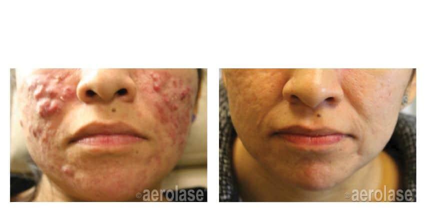 Acne Treatment Center For Aesthetic Dermatology Amp Laser