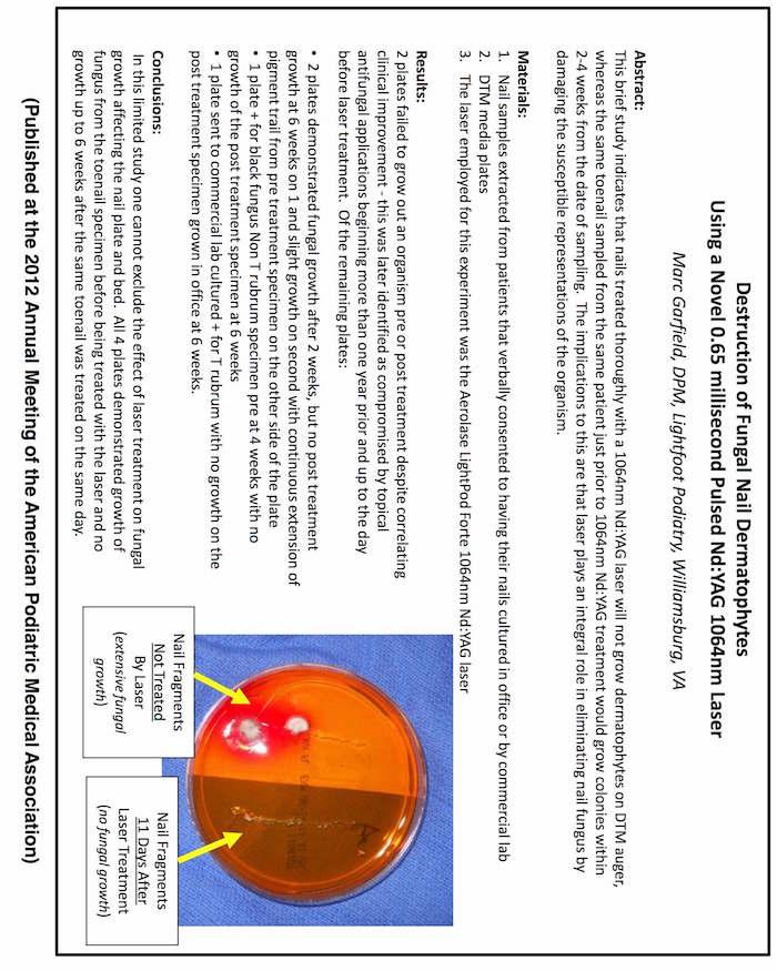 Destruction of Fungal Nail Dermatophytes Using a Novel 650 ...
