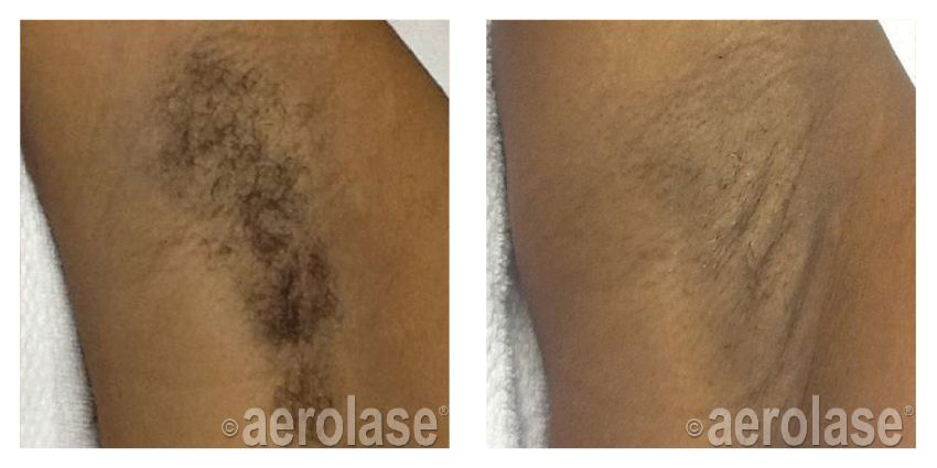 Hair Removal Aerolase