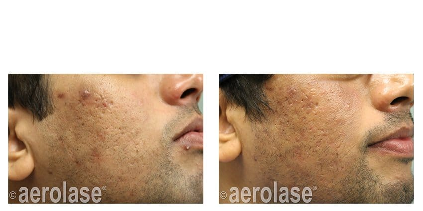Neoclear Acne Free The Only Comprehensive Solution For Acne