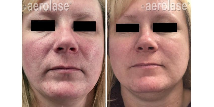 Rosacea Redness Aerolase